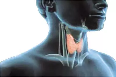 Papillary Thyroid Carcinoma(PTC).png